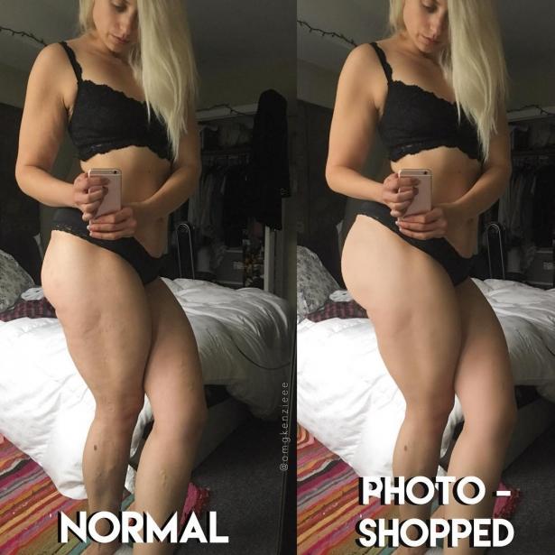 Торжество целлюлита: почему блогер призывает женщин открыто демонстрировать недостатки тела в соцсетях - фото №2