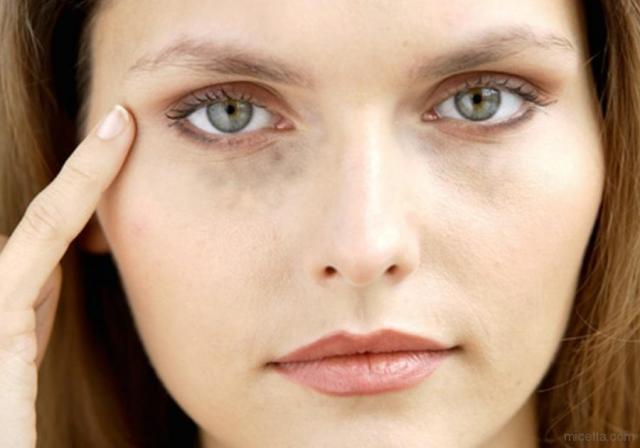"""Разговор с косметологом: """"Мой конкурент — психолог"""" (круги под глазамы, шея и контур лица, косметика для мужчин) - фото №8"""