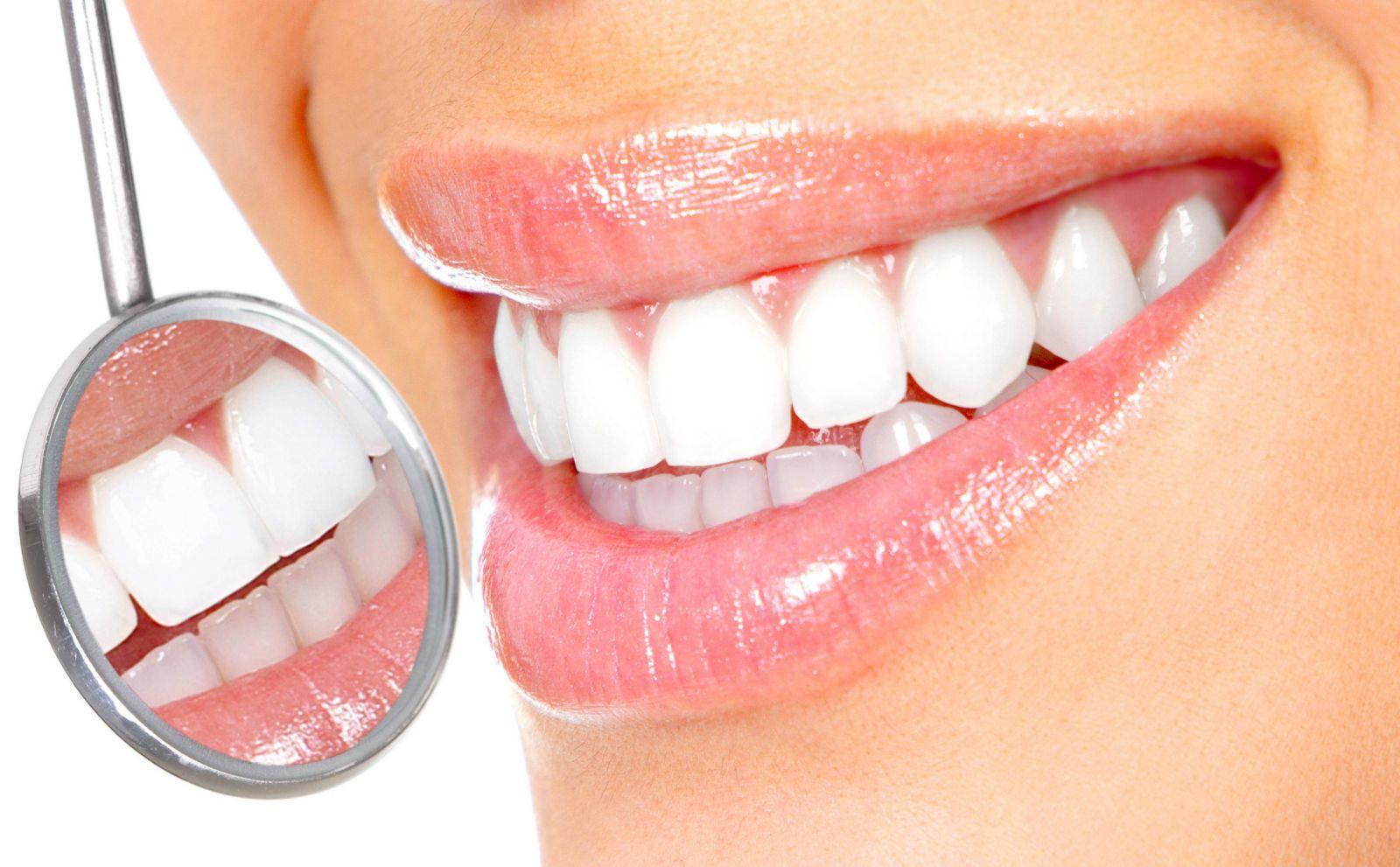 Топ 10 способов отбелить зубы в домашних условиях - фото №5