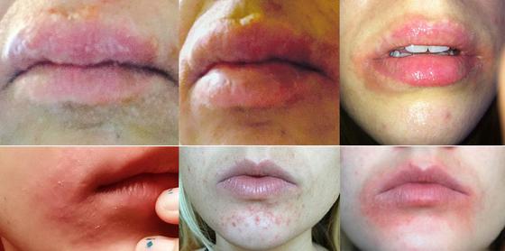 больные губы