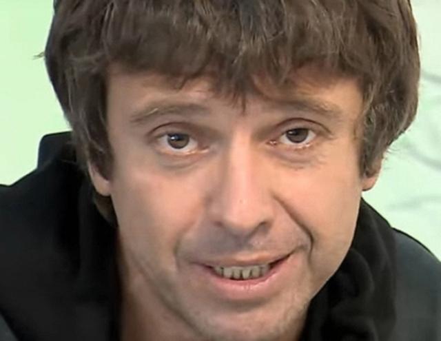"""Андрей Губин шокировал откровениями о своей внешности: """"Губы синеют, тело разваливается... Но я привык"""" (ВИДЕО) - фото №2"""