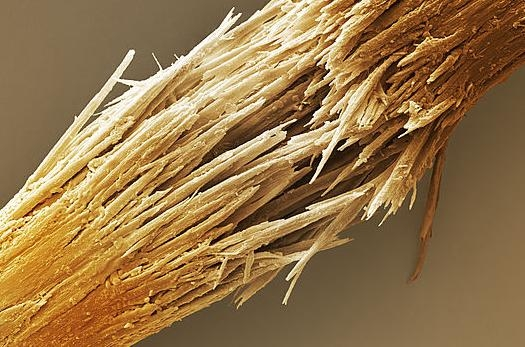 14 популярных вопросов про болезни волос: фен и силикон, секущиеся кончики, краски (хна и басма), шампуни (ИНТЕРВЬЮ с врачом) - фото №11