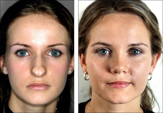 Исправь форму носа или все, что необходимо знать про ринопластику - фото №5
