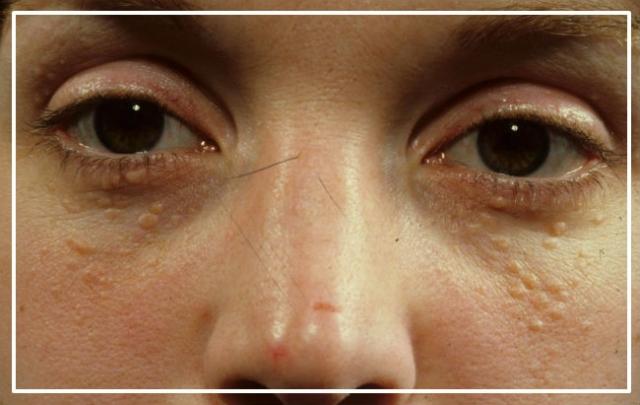 Нет проблемы: как избавиться от жировиков на лице - фото №1
