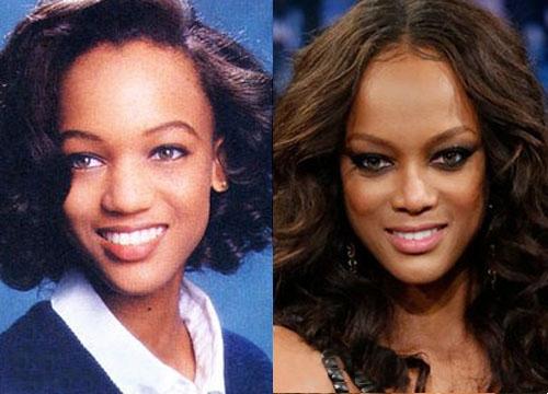 фото до и после звезды