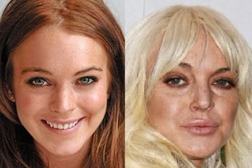 камалия до и после пластики фото