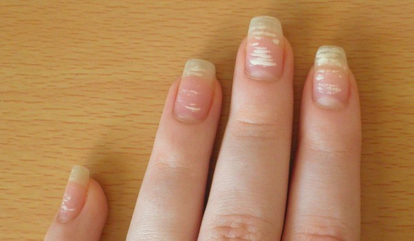 На ногтях появились фото
