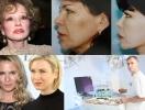 """Разговор с пластическим хирургом: как делают """"молодое"""" лицо. Операции Рене Зеллвегер и Людмилы Гурченко"""