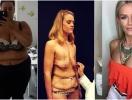 Что стоит за похудением на 92 килограмма: уродливая обвисшая кожа и нетерпимость людей