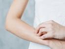 Body-акне: как справиться с высыпаниями на теле