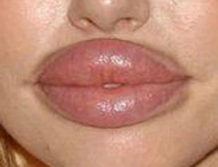 За что мужчины не любят силиконовые губы