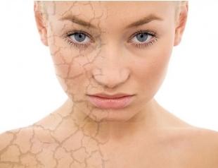 Какие продукты необходимо исключить ради идеальной кожи
