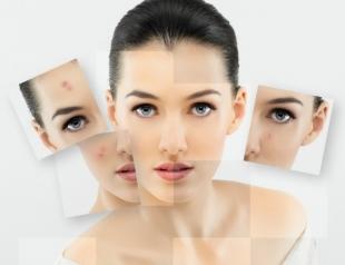 Как связаны проблемная кожа и дисбактериоз