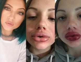 Когда флешмоб становится опасным: подростки начали увеличивать губы, как у Кайли Дженнер