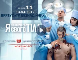 «Я соромлюсь свого тіла» 4 сезон: 11 выпуск от 13.04.2017 смотреть онлайн ВИДЕО