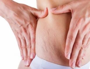 Все красиво: салонные процедуры, которые помогут избавиться от растяжек