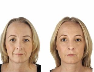 Что такое фотоомоложение лица или что тебе нужно знать об этой салонной процедуре