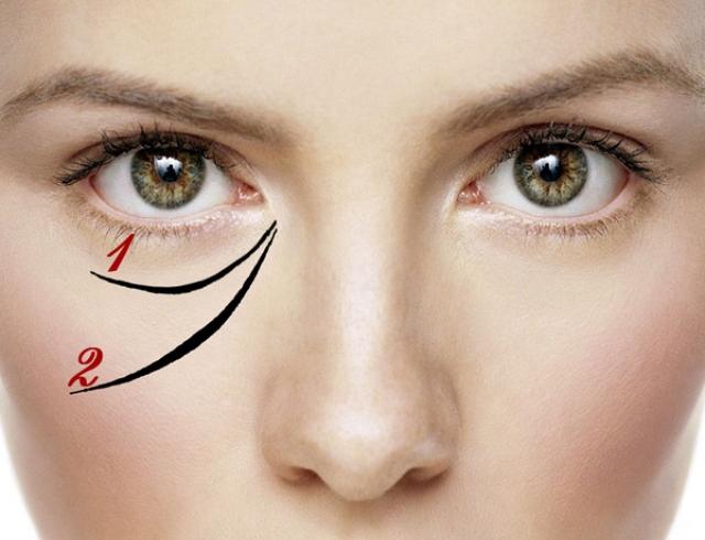Как убрать морщины вокруг глаз на 100%? Эксперимент редакции журнала ХОЧУ