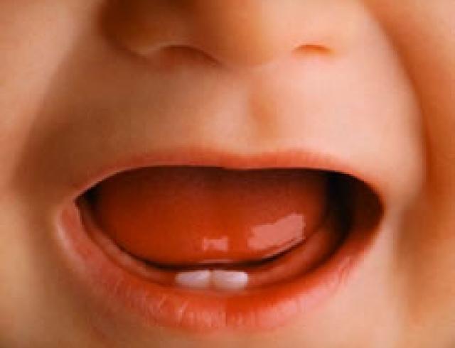 Первые зубки. Сложности периода